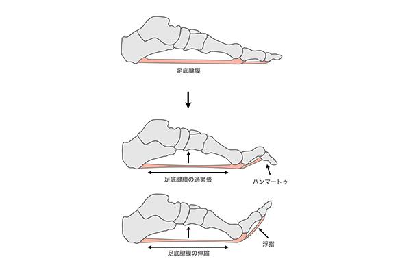 足にフィットしない靴が足裏の痛みの原因