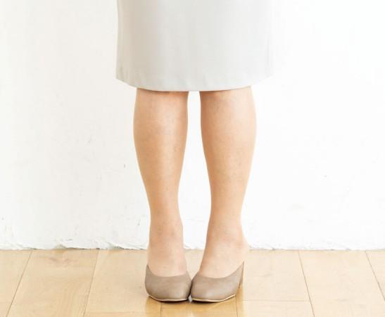 スカートの場合の立ち方NG例:足を揃えるとO脚が目立ってしまう